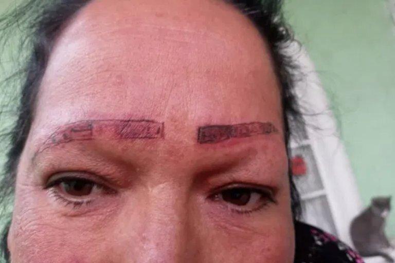 Teresita Cruz utilizó las redes sociales para denunciar los estragos que sufrió su madre en el rostro.