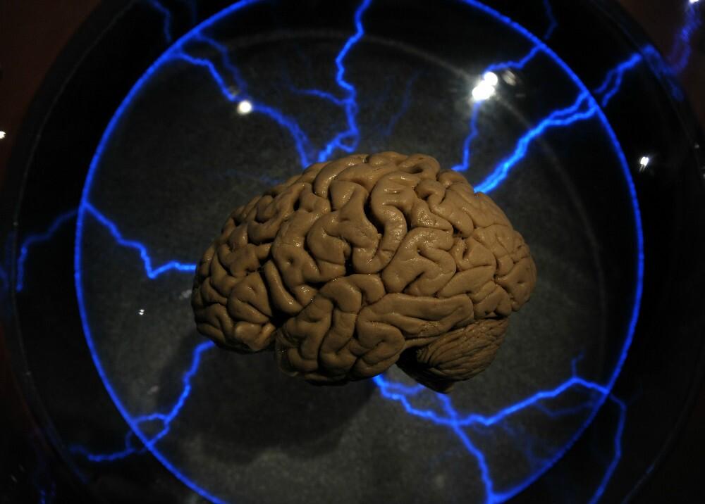 282971_BLU Radio. Cerebro / Foto referencia: AFP