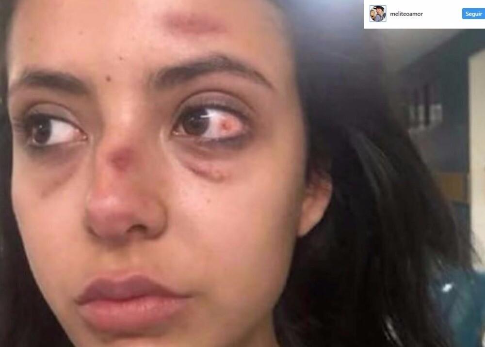 5639_La Kalle - Modelo es brutalmente atacada por su suegra - Foto Instagram
