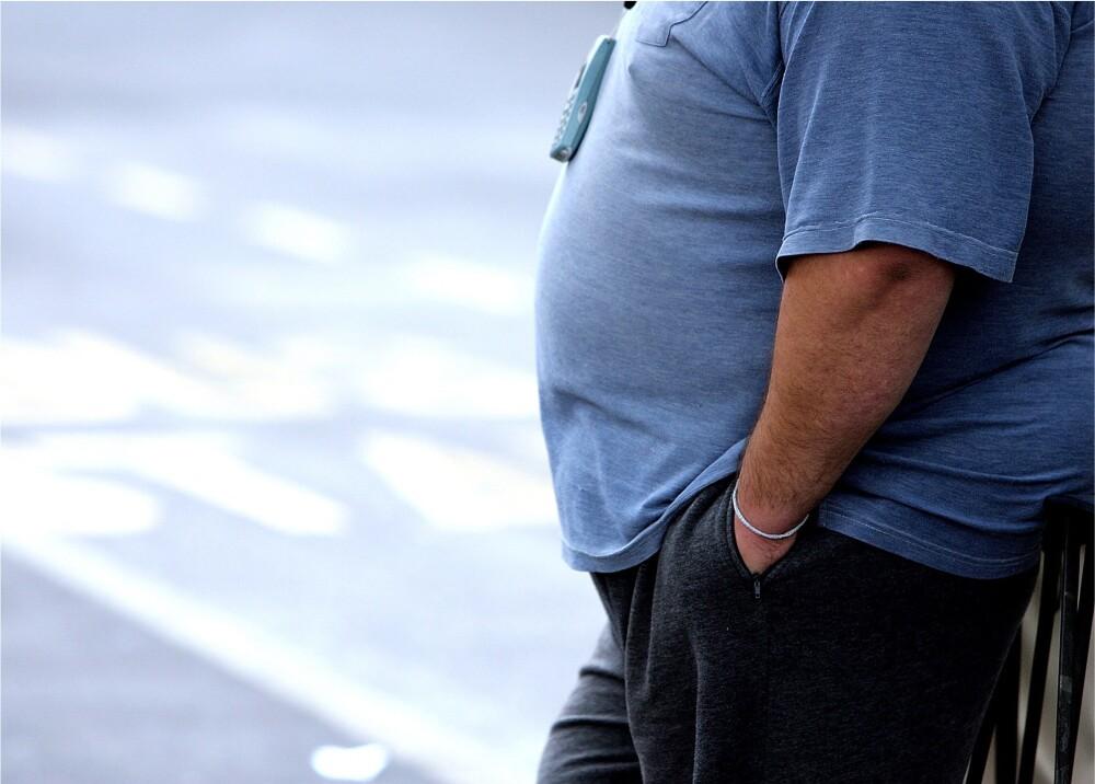 Obesidad referencia Foto AFP.jpg