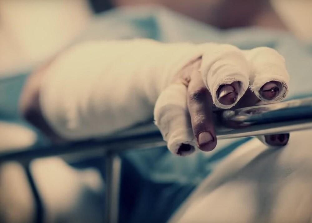 350045_BLU Radio. Quemados // Foto: Ministerio de Salud