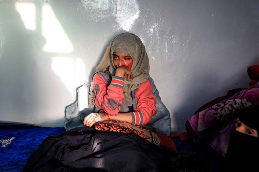 Joven yamení Al-Anoud Hussain Sheryanse abusada y desfigurada con ácido por su esposo.