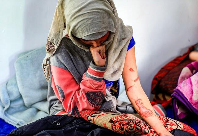 joven quemada con acido yemen
