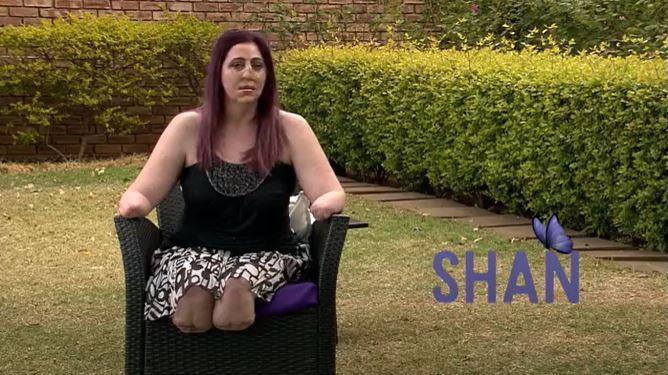 mujer que perdió manos y piernas y parte de la cara por mordedura de mangosta