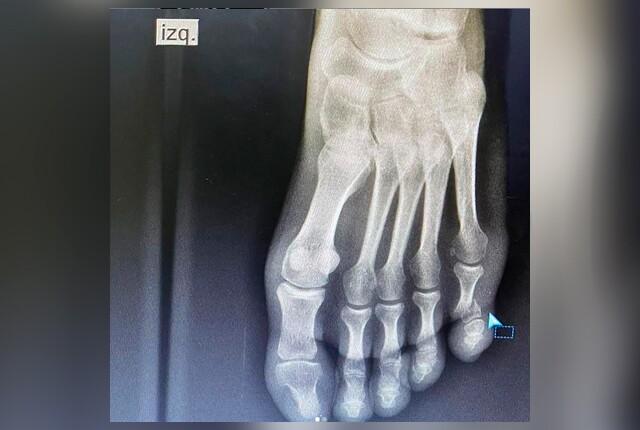 fractura-dedo-rigoberto-uran.jpg