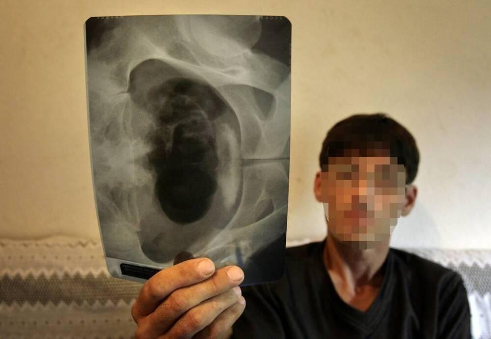 Ofrecen riñón en venta por largo confinamiento agravado por el COVID-19