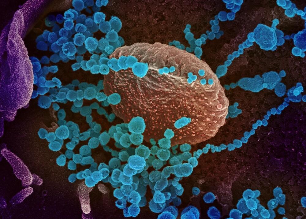 359564_Imagen de microscopio de barrido electrónico del virus SARS-CoV-2 // Foto/ AFP