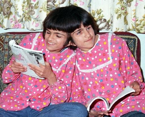 efemérides 8 de julio - siamesas iraníes Laleh y Ladan Bijani murieron