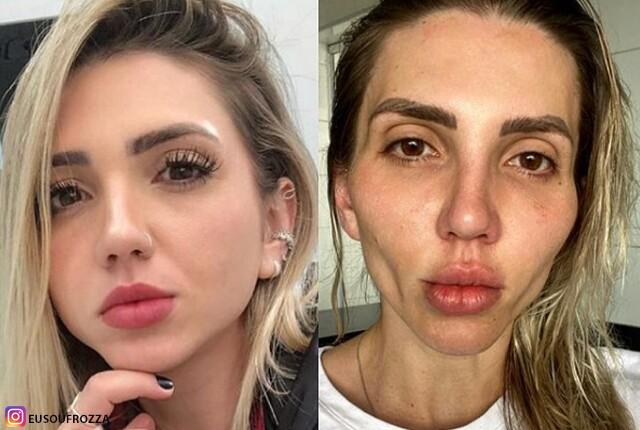influencer cirugia rostro