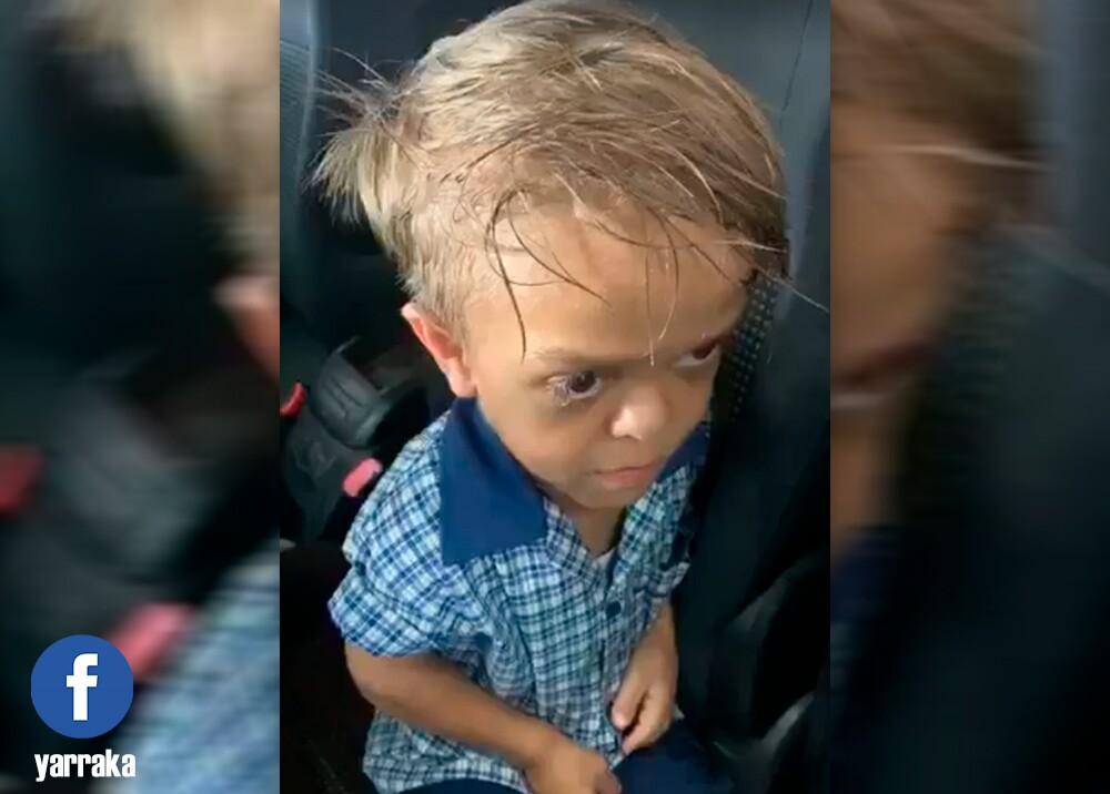 355926_Niño que sufre de bullying / Foto: Facebook Yarraka Bayles