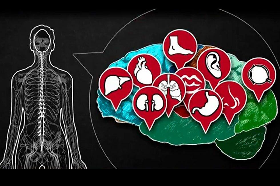 Síndrome Guillain-Barré