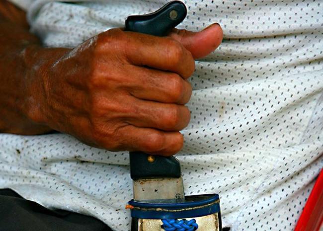 355361_BLU Radio// Referencia ataque con machete. Foto: AFP