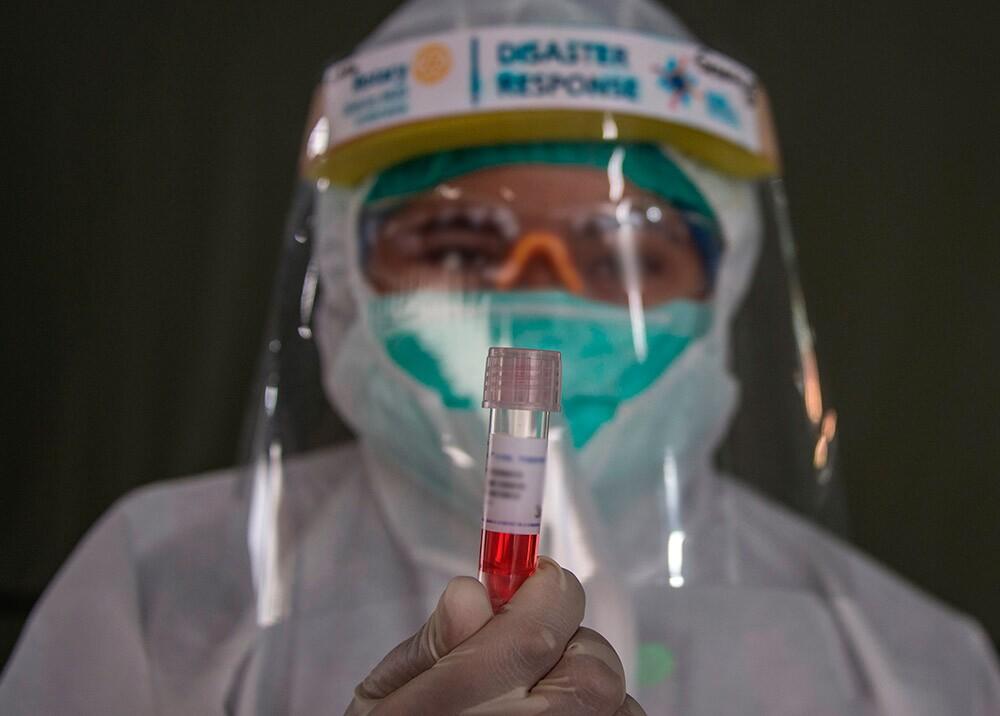 362494_Investigaciones sobre coronavirus // Foto: AFP, imagen de referencia