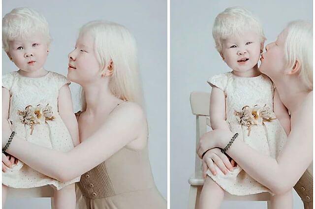 hermanas_albinas_lo_mas_trinado.jpg