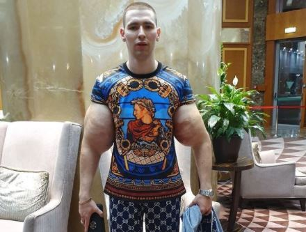Se le explota un brazo al hulk ruso