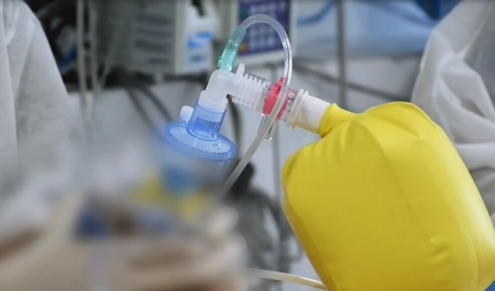 Intubación COVID