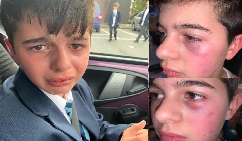 Niño con autismo que fue golpeado