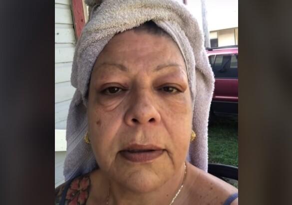 Mujer es sensación en TikTok con crema que elimina bolsas bajo los ojos