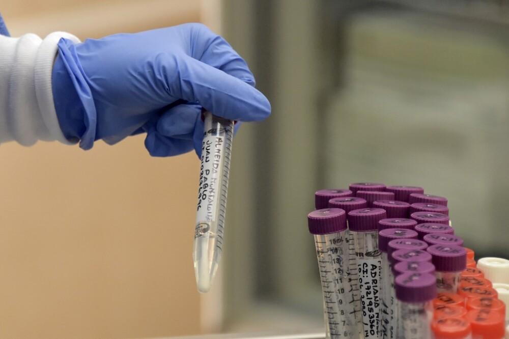 368651_Test coronavirus. Foto: AFP
